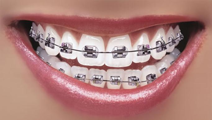 trouver-appareil-dentaire